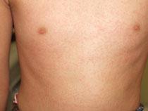 溶連菌感染症 喉の痛み 発熱 舌 身体への発疹 医師監修 大人