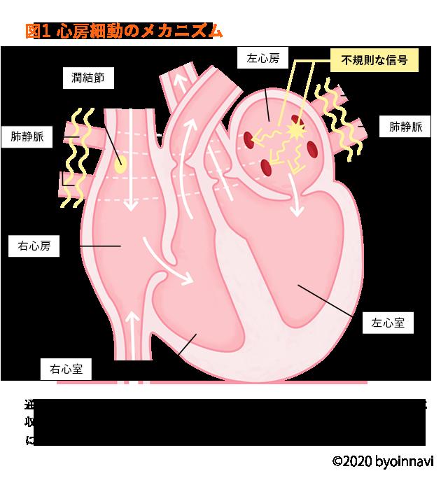 手術 アビ レーション 心房細動:カテーテルアブレーション体験者からのアドバイス①:心房細動と診断された方へ