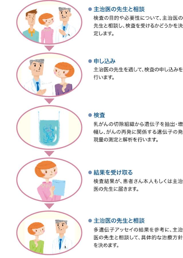 岡江久美子 乳がん ステージ